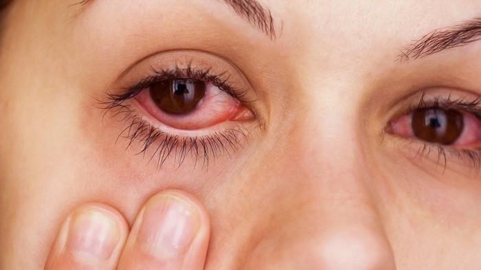 Cara Atasi Iritasi Mata: Lakukan 7 Cara Sederhana Ini di Rumah, Kantong Teh Dapat Atasi Iritasi Mata